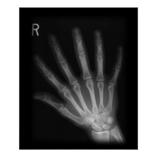 Extra Digit X-ray Right Hand Poster