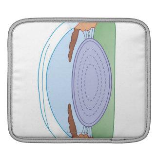 Eye After Corrective Surgery iPad Sleeve