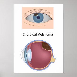 Eye disease Uveal melanoma Poster