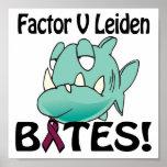 Genetic Testing for Factor V Leiden