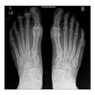 FEET X-RAY POSTER