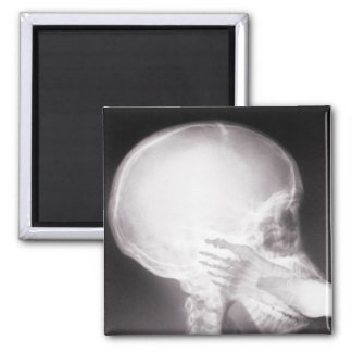 Foot in Mouth X-Ray Fridge Magnet