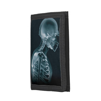 Football Xray Trifold Wallet