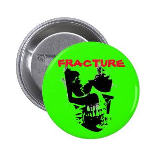 fracture skull 6 cm round badge