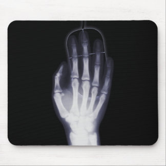 Funny Hand X-ray For internet addictioner Mouse Mat