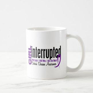 Girl Interrupted 1 Crohn s Disease Coffee Mug