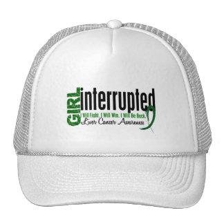Girl Interrupted 1 Liver Cancer Trucker Hat