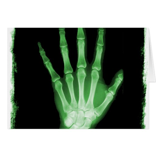 Green X-ray Skeleton Hand Greeting Cards
