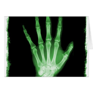 Green X-ray Skeleton Hand Greeting Card