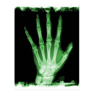 Green X-ray Skeleton Hand Postcard