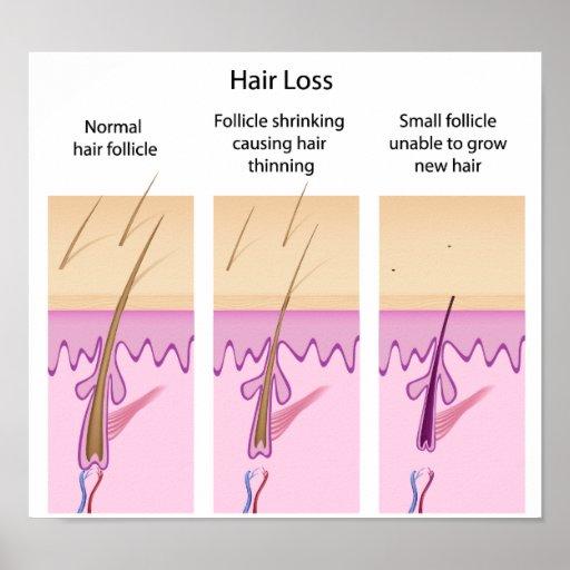 Hair loss process Poster