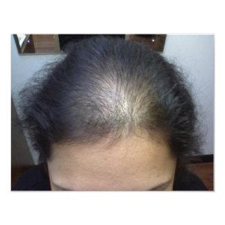 Hair T 11 Cm X 14 Cm Invitation Card