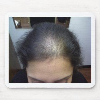 Hair T Mousepads