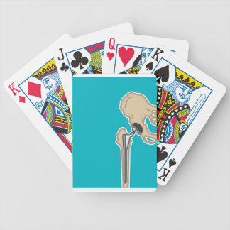Hip Joint Replacement Bicycle Playing Cards
