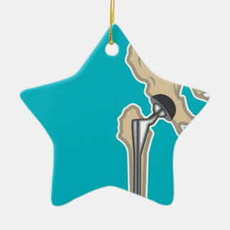 Hip Joint Replacement Ceramic Star Decoration