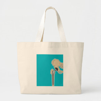 Hip Joint Replacement Jumbo Tote Bag