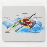 Hip Replacement Mousepad (version 1)