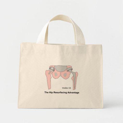 Hip Resurfacing Advantage Bag