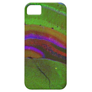 Hippocampal neurons iPhone 5 case