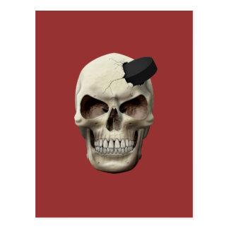 Hockey Puck in Skull Postcard