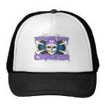 Hodgkin's Lymphoma Tougher Than Cancer Skull Trucker Hat