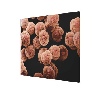 Human fibroblast cells growing on sephadex beads canvas print