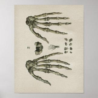Human Hand Bones Anatomy Vintage Print