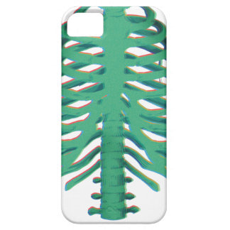 Human Skeleton Ribs iPhone 5 Case