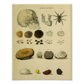 Human Skull Spider Medical Anatomy Art Print