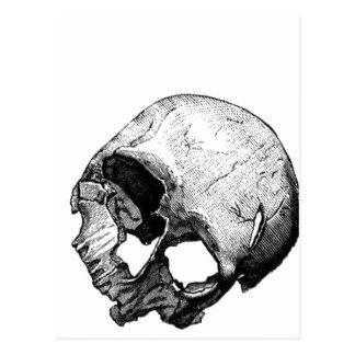 Human Skull Vintage Illustration Postcard