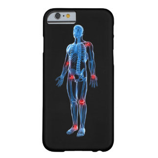 Human Xray Barely There iPhone 6 Case
