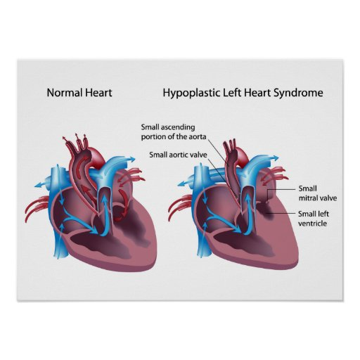 Hypoplastic left heart syndrome Poster