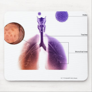 Illustration of an asthma attack from pollen mouse mat