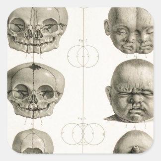 Infant Skull Deformities Weird/Conjoin Baby Square Sticker
