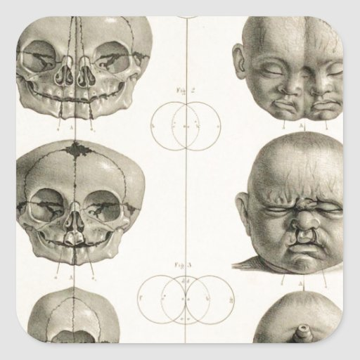 Infant Skull Deformities Weird/Conjoin Baby Square Sticker