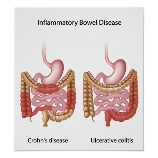 inflammatory bowel disease essay Free essay: huntington's disease huntington's disease is a fatal inherited  disorder characterized by  essay inflammatory bowel disease/ crohn's disease.