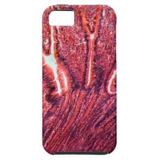 Intestine Cells under the Microscope iPhone 5 Cases