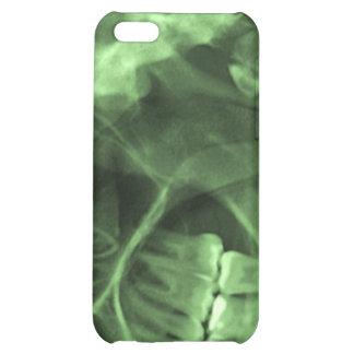 iPhone4 - xray left green iPhone 5C Cases