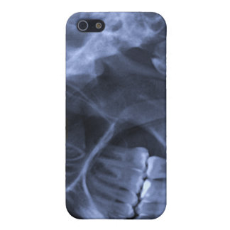 iphone 4 - Jaw X-ray (left handed) Blue Covers For iPhone 5