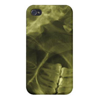 iphone 4 - Jaw X-ray (left handed) Yellow Covers For iPhone 4