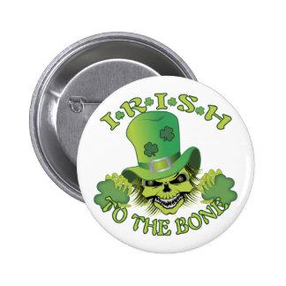 Irish Skull Buttons