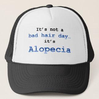 It's not a bad hair day… it's  Alopecia Trucker Hat