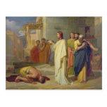 Jesus Healing the Leper, 1864 Postcard