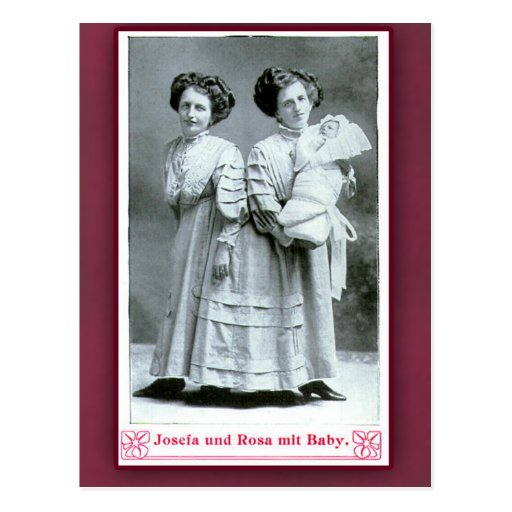 Josefa and Rosa Circus Performers on Cards Postcard