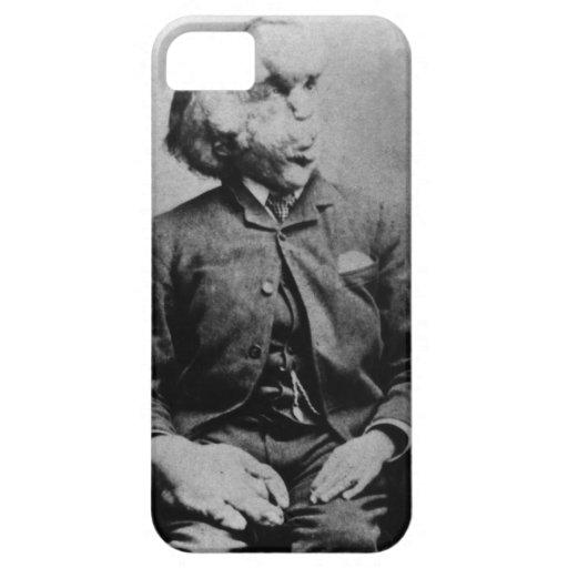 "Joseph ""John"" Merrick The Elephant Man from 1889 iPhone 5 Case"