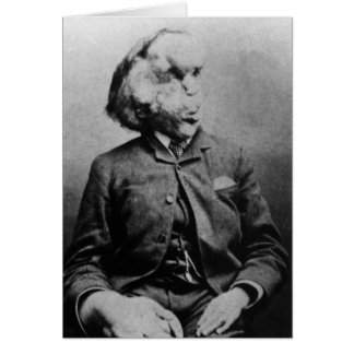 "Joseph ""John"" Merrick The Elephant Man from 1889 Greeting Card"