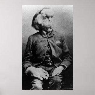 """Joseph """"John"""" Merrick The Elephant Man from 1889 Poster"""