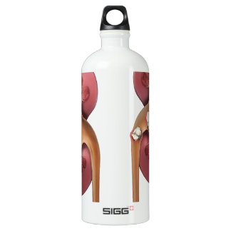 kidneys SIGG traveller 1.0L water bottle