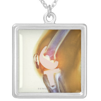 Knee replacement. Coloured X-ray of a total knee Silver Plated Necklace