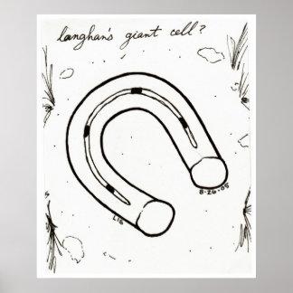 Langhan's Giant Cell print